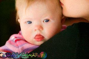 4 روش تشخیص جنین منگول