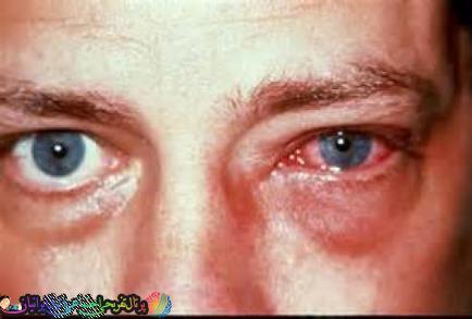 شیوع ویروس چشمی خطرناک در ایران