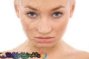 روشهایی برای پوستی سالم